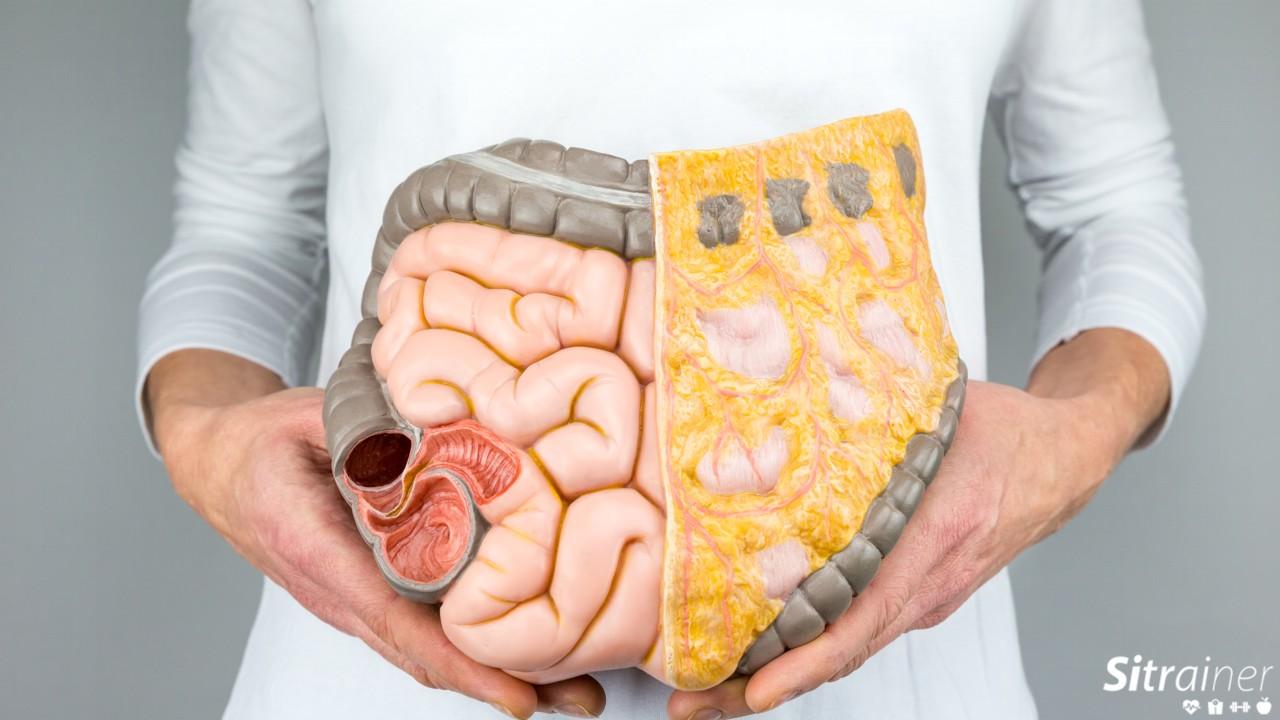 Mantener un intestino sano para adelgazar es la clave