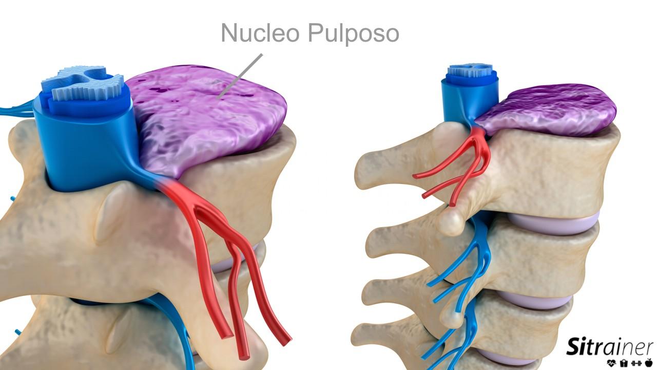 nucleo pulposo